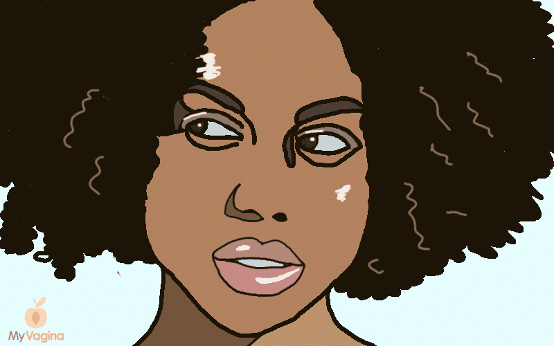 Black women and BV