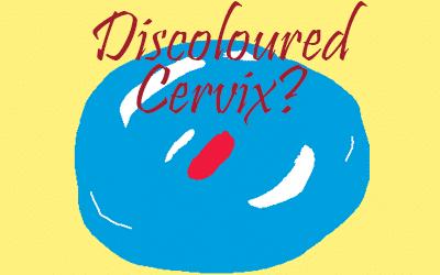 Discoloured Cervix
