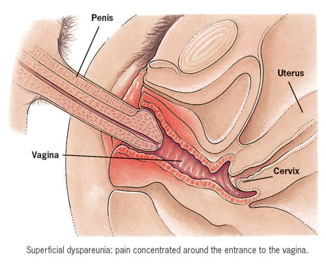 Pain during sex deep penetration