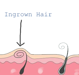 Aunt Vadge: I'm scared of needles – how do I get rid of an ingrown hair on my bikini line?