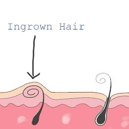 Infected ingrown bikini hair new sex images