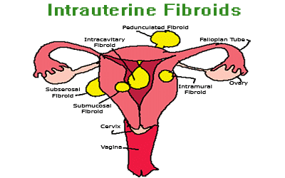 Uterine fibroids – leiomyoma (cervical myoma)