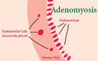 Adenomyosis – trapped endometrial cells