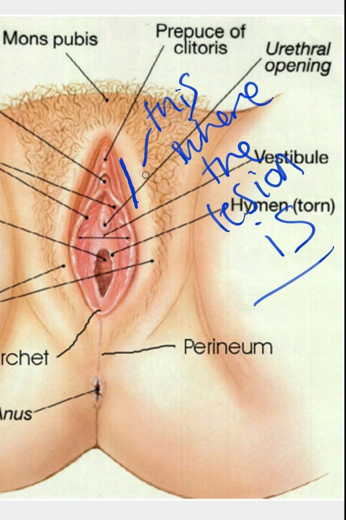 Red raised lesion between labia