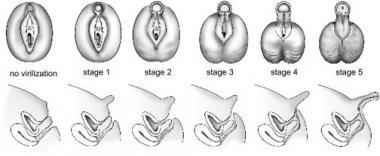5α-Reductase deficiency