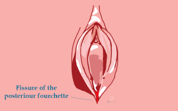 Posterior fourchette - My Vagina