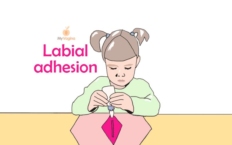 Labial adhesion labial agglutination My Vagina