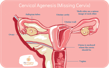 Reproductive Tract Cervical Agenesis